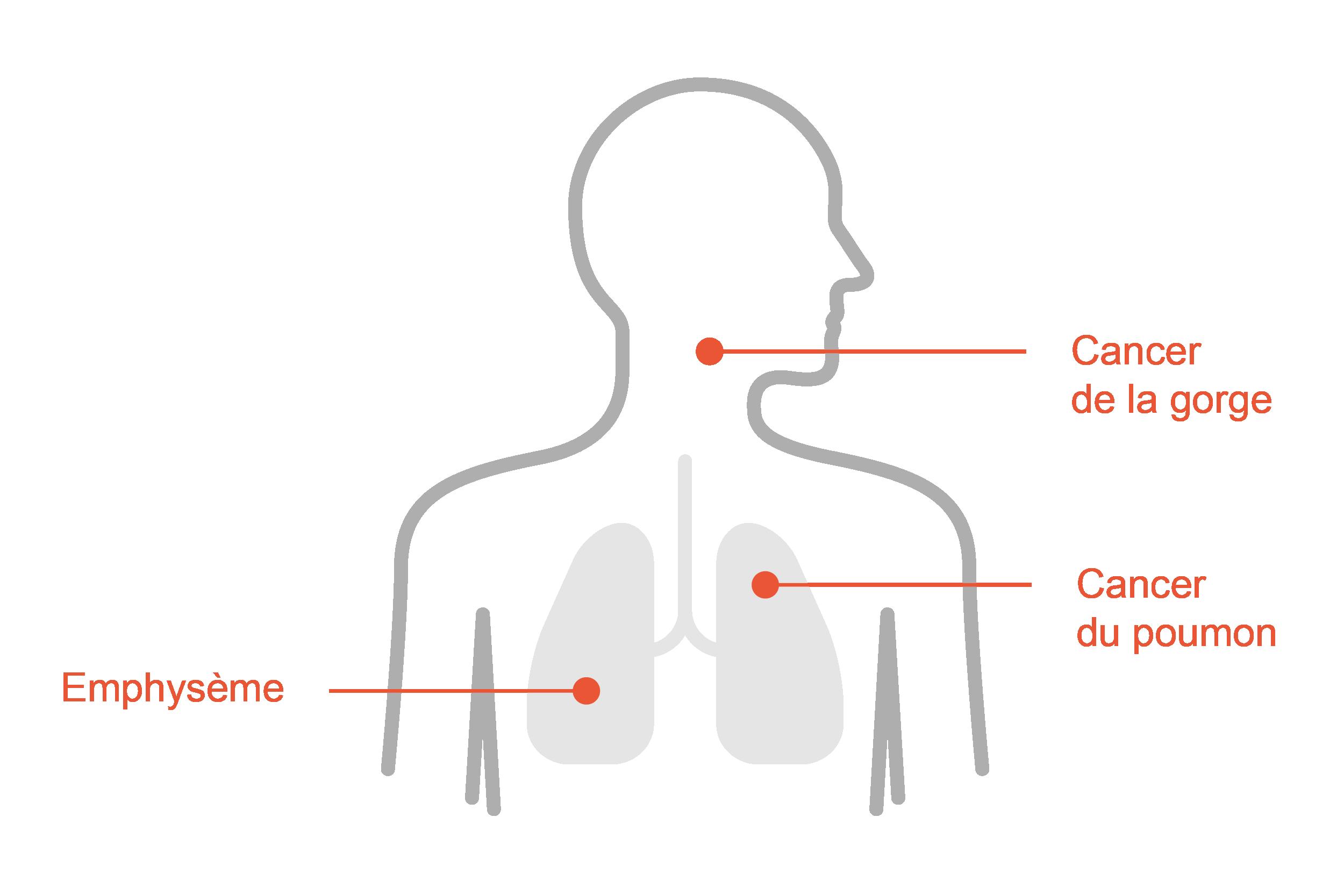 Recours collectif pour le tabac